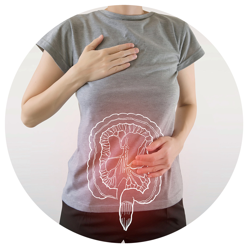 Reizdarmsyndrom und Unklare Bauchbeschwerden